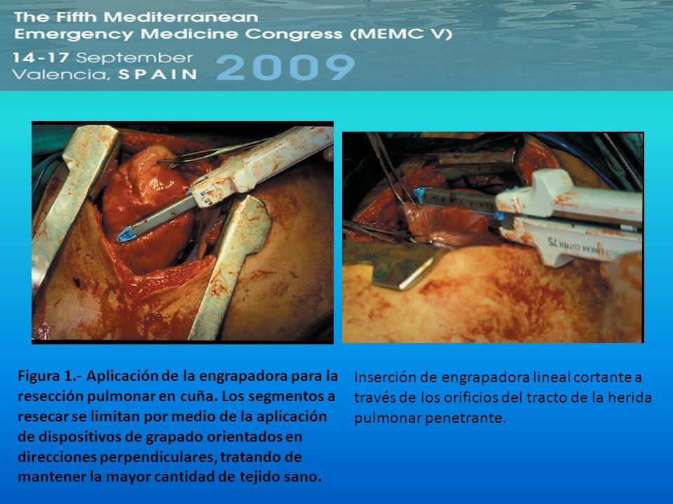 Figura 1.- Aplicación de la engrapadora para la resección pulmonar en cuña. Los segmentos a resecar se limitan por medio de la aplicación de dispositivos de grapado orientados en direcciones perpendiculares, tratando de mantener la mayor cantidad de tejido sano.
