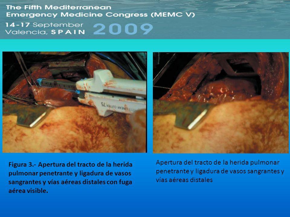 Apertura del tracto de la herida pulmonar penetrante y ligadura de vasos sangrantes y vías aéreas distales