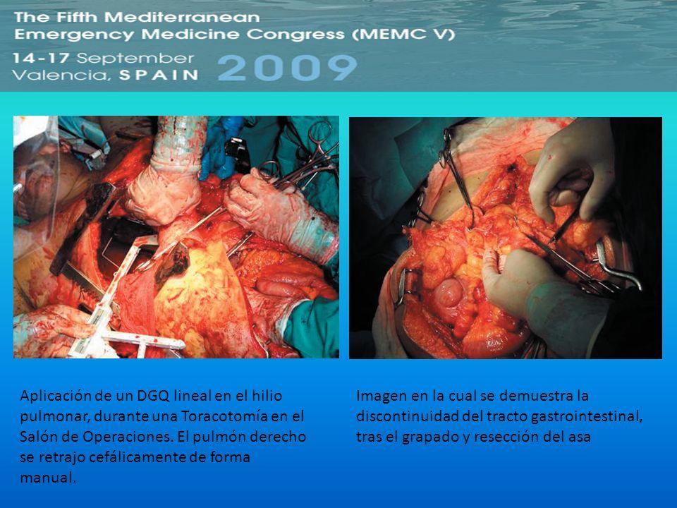Aplicación de un DGQ lineal en el hilio pulmonar, durante una Toracotomía en el Salón de Operaciones. El pulmón derecho se retrajo cefálicamente de forma manual.