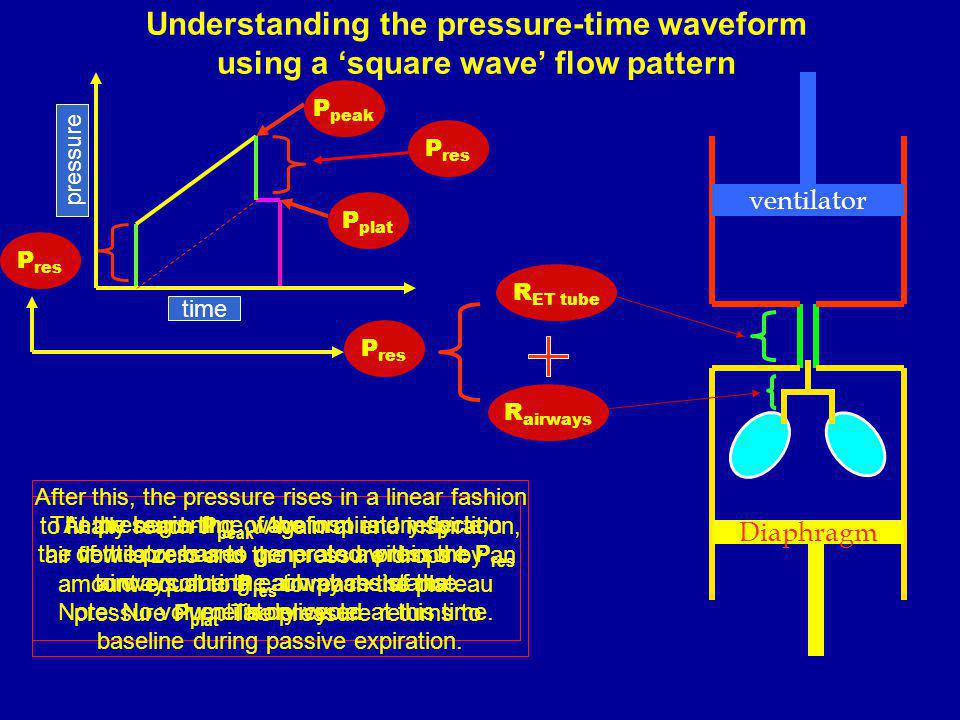 Understanding the pressure-time waveform