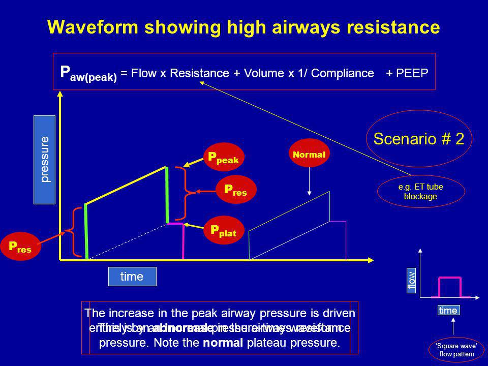 Waveform showing high airways resistance