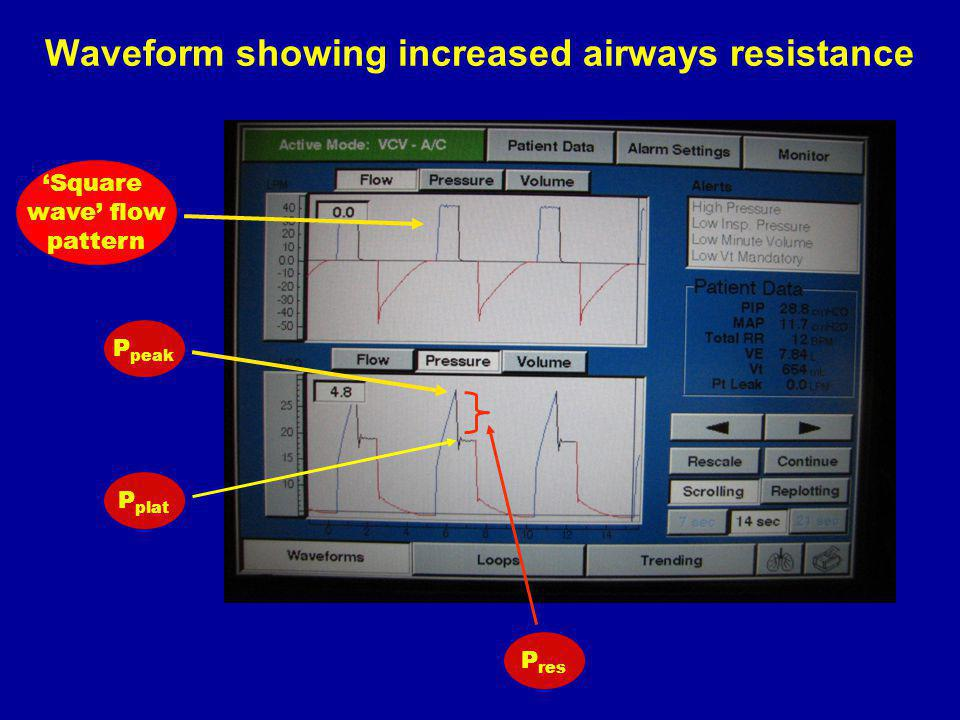 Waveform showing increased airways resistance
