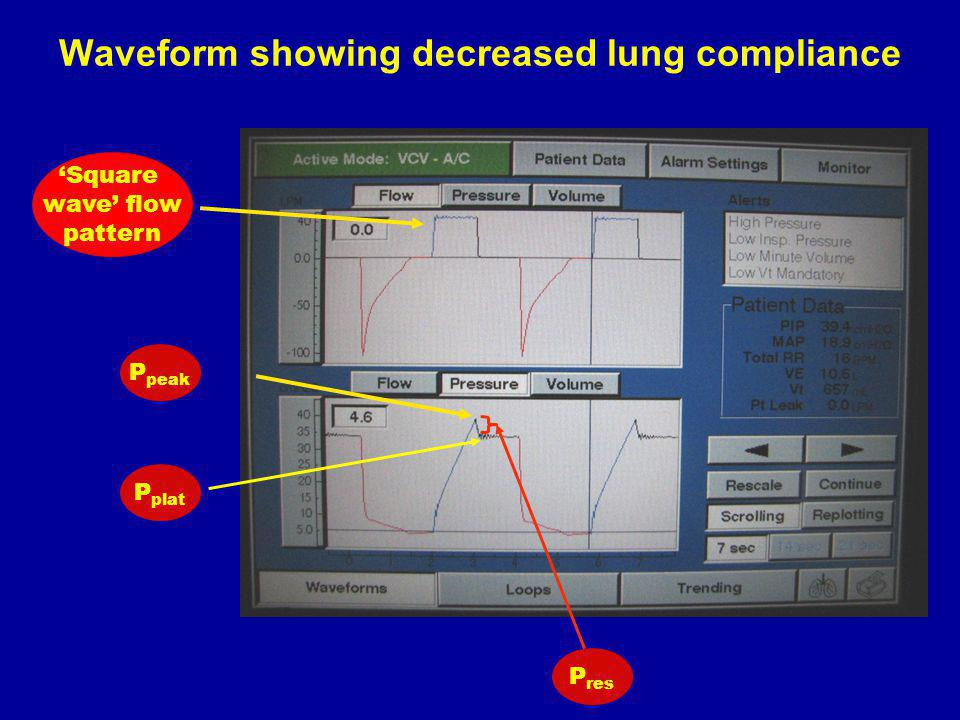 Waveform showing decreased lung compliance
