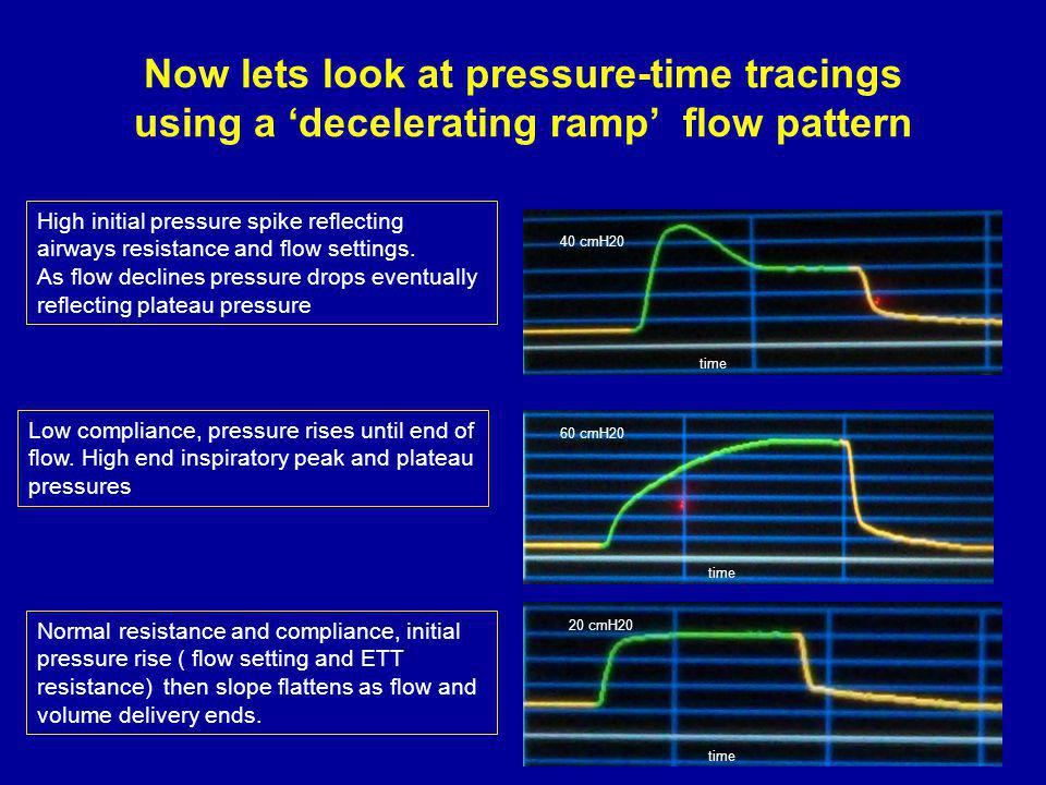 Now lets look at pressure-time tracings using a 'decelerating ramp' flow pattern
