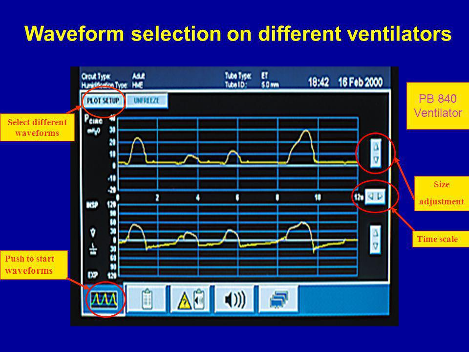 Waveform selection on different ventilators