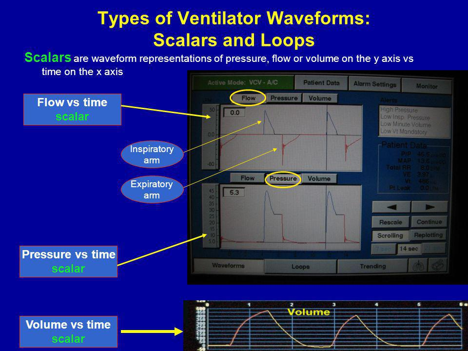Types of Ventilator Waveforms: Scalars and Loops