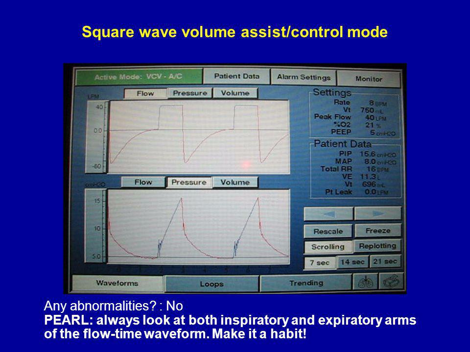 Square wave volume assist/control mode