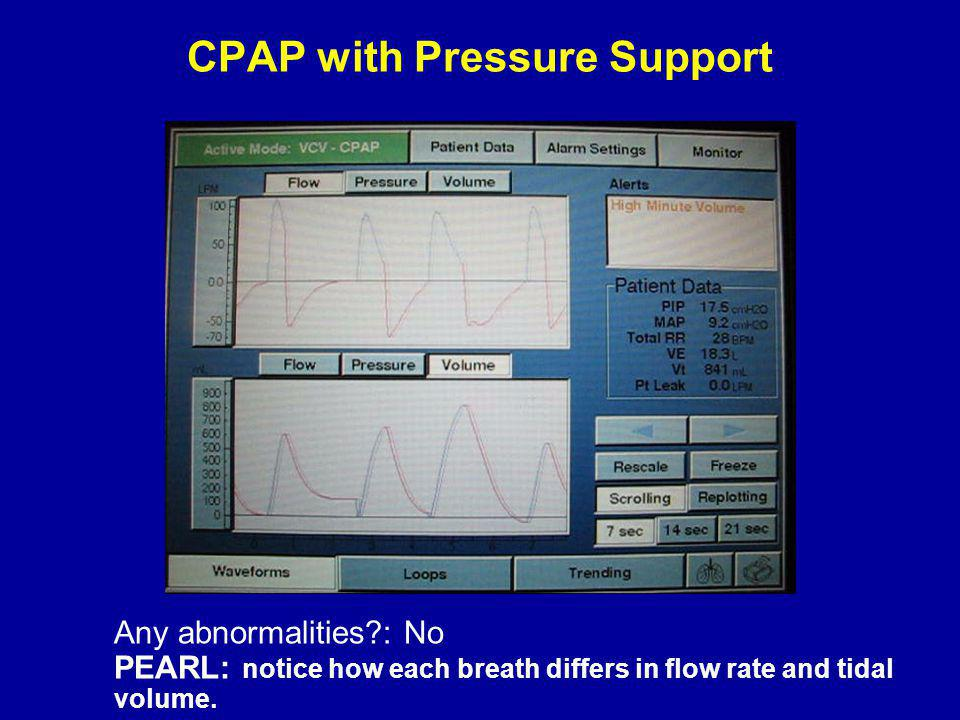 CPAP with Pressure Support