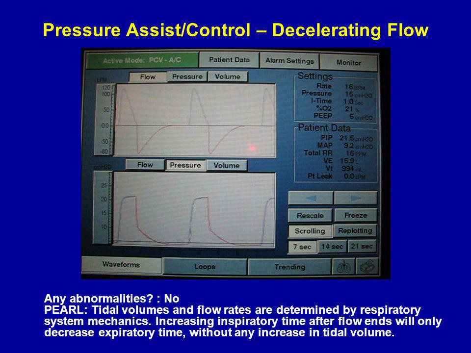 Pressure Assist/Control – Decelerating Flow