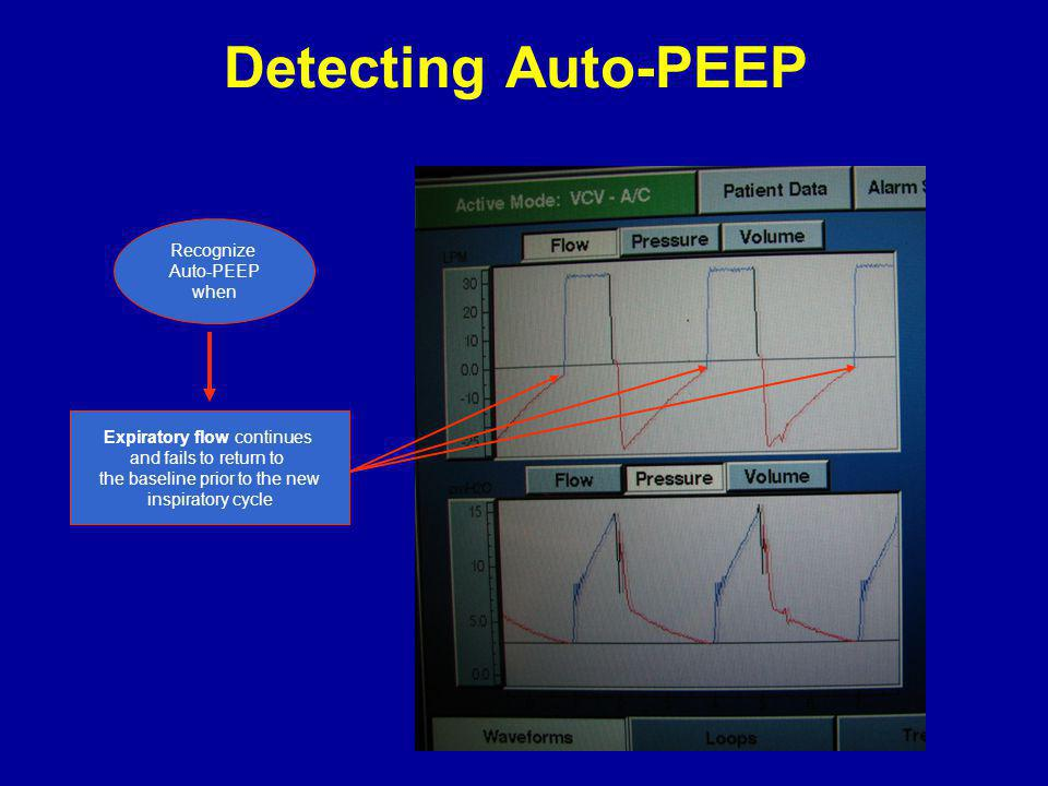Detecting Auto-PEEP Recognize Auto-PEEP when Expiratory flow continues