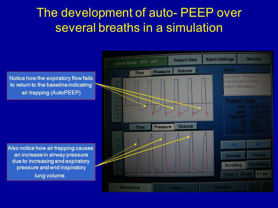 The development of auto- PEEP over several breaths in a simulation