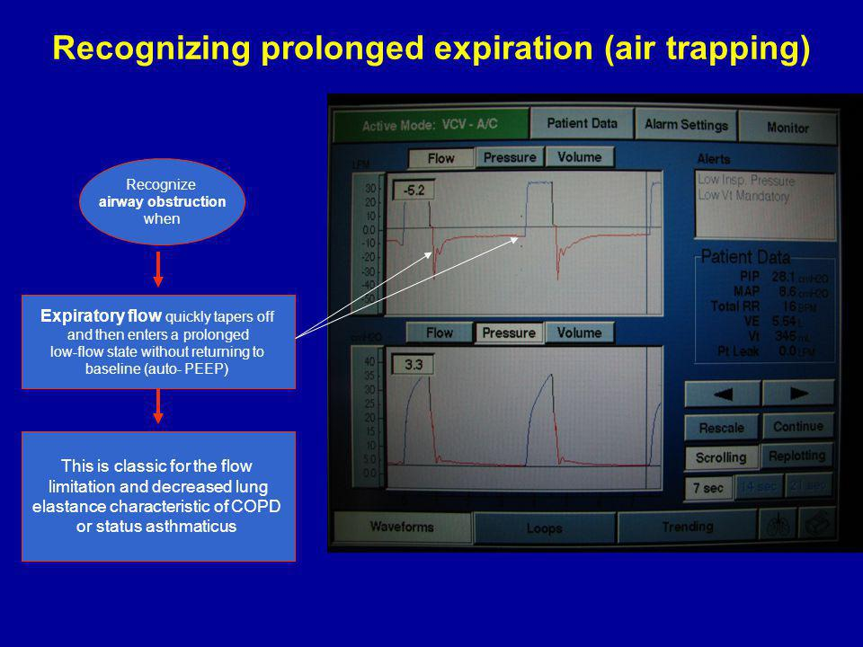 Recognizing prolonged expiration (air trapping)