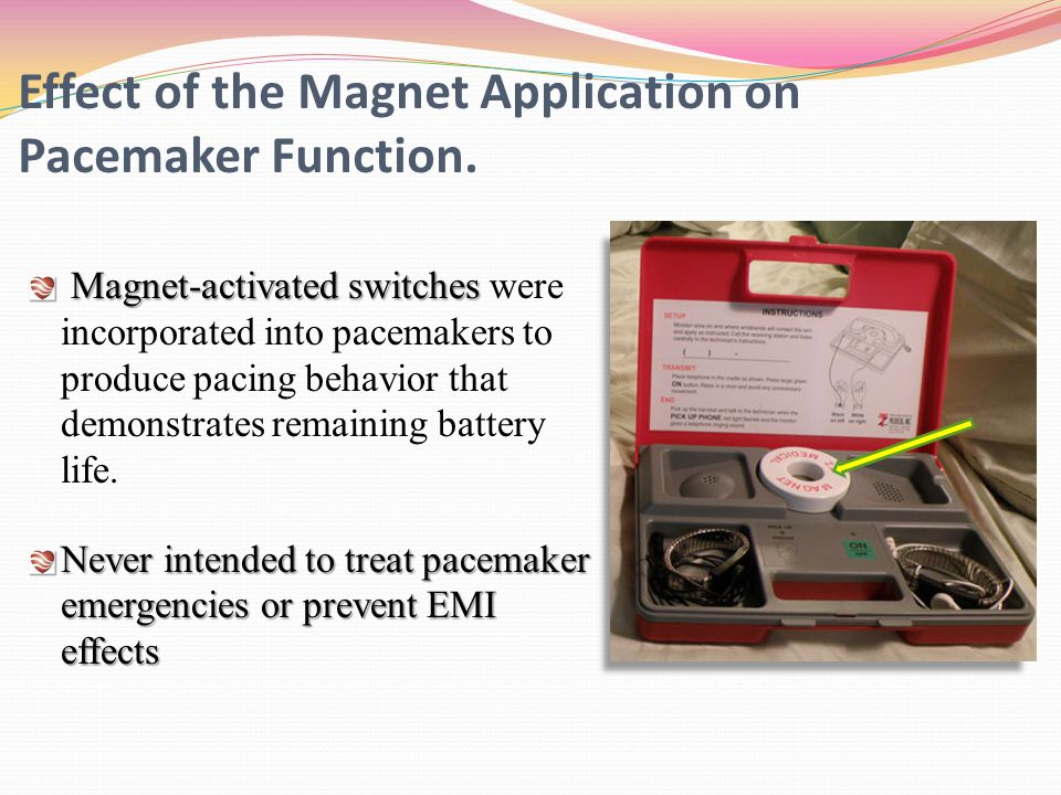Effect of the Magnet Application on Pacemaker Function.