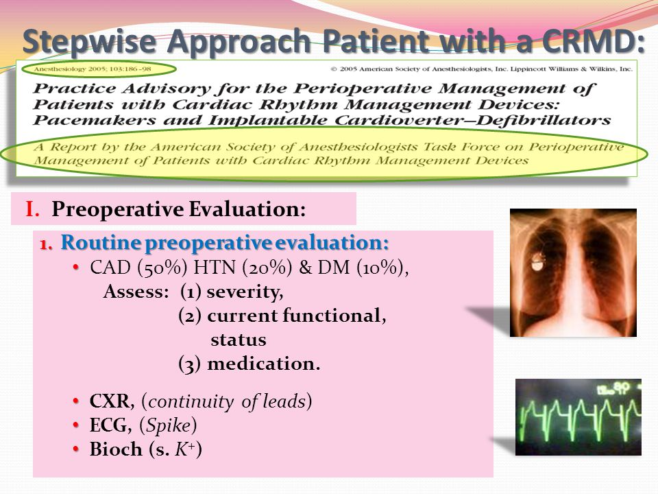 Stepwise Approach Patient with a CRMD: