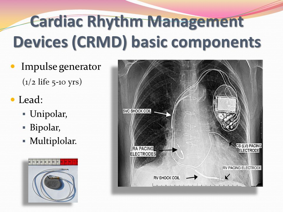 Cardiac Rhythm Management Devices (CRMD) basic components