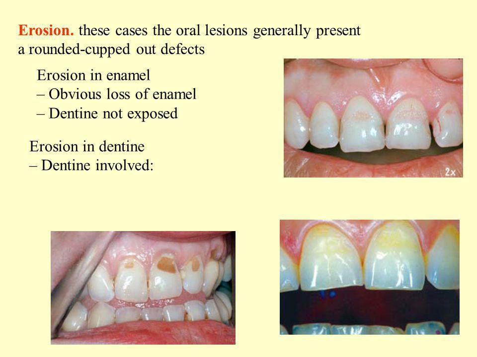 Erosion. these cases the oral lesions generally present a rounded-cupped out defects