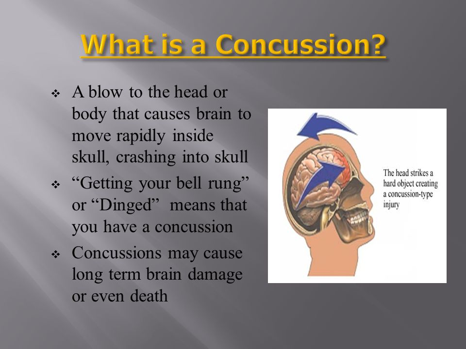 What is a Concussion A blow to the head or body that causes brain to move rapidly inside skull, crashing into skull.