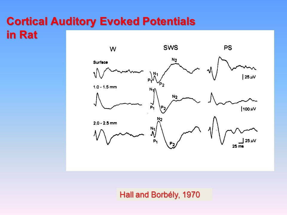 Cortical Auditory Evoked Potentials in Rat