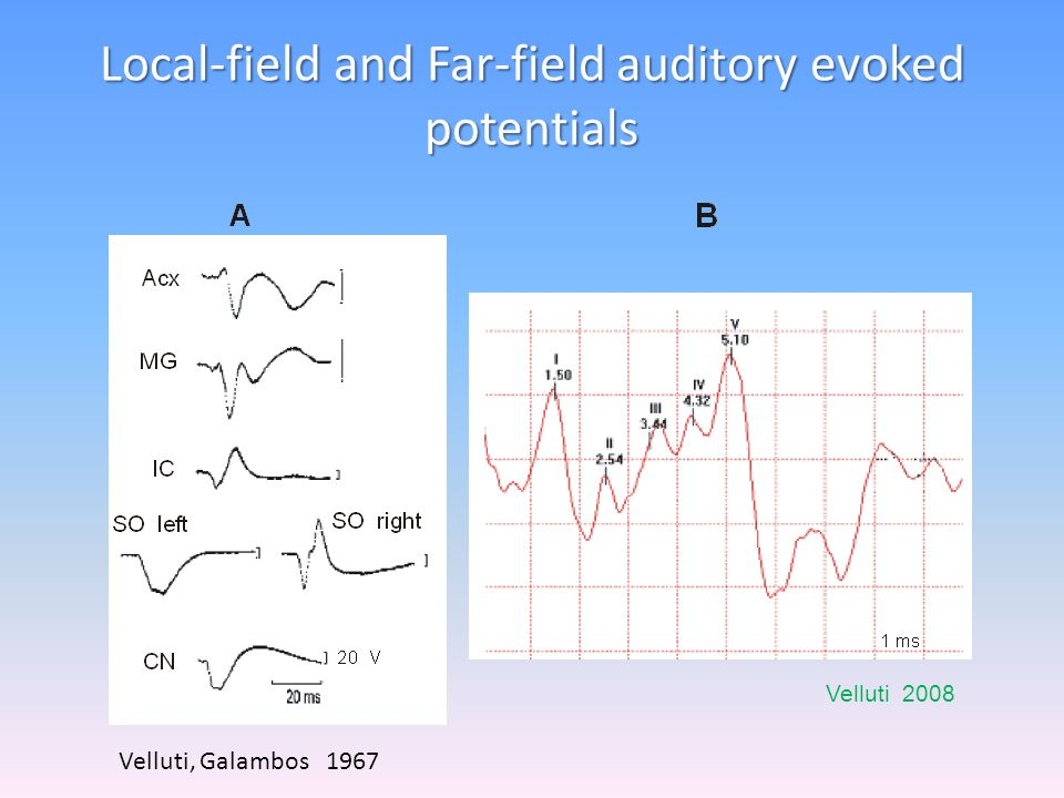 Local-field and Far-field auditory evoked potentials