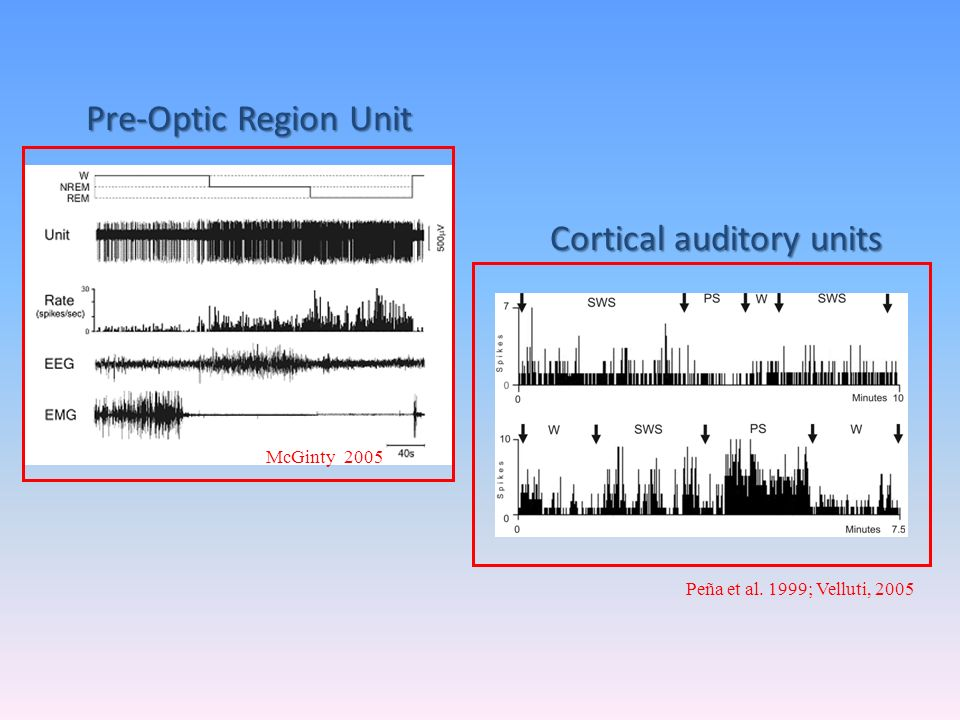 Cortical auditory units