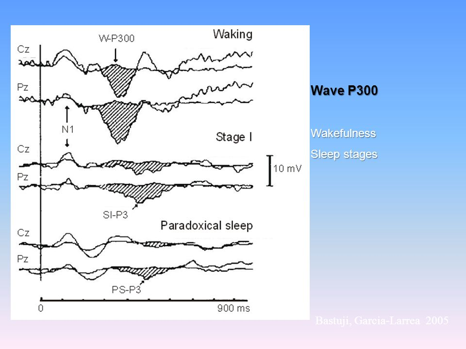 Wave P300 Wakefulness Sleep stages Bastuji, Garcia-Larrea 2005