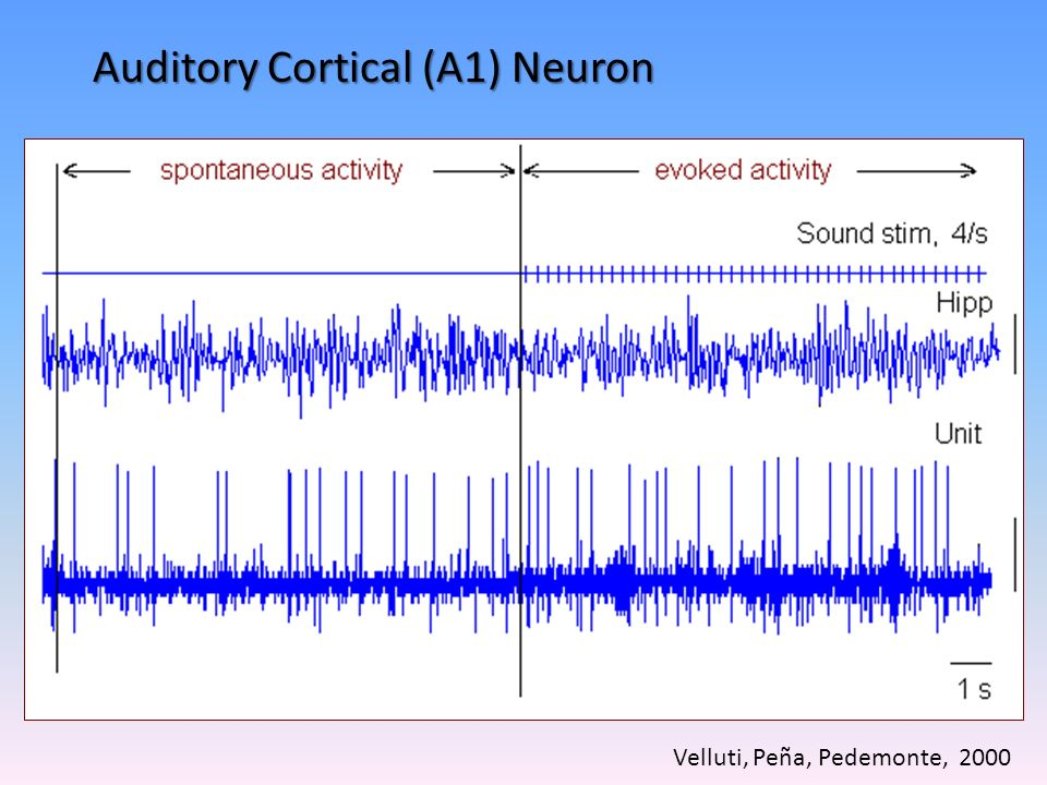 Auditory Cortical (A1) Neuron