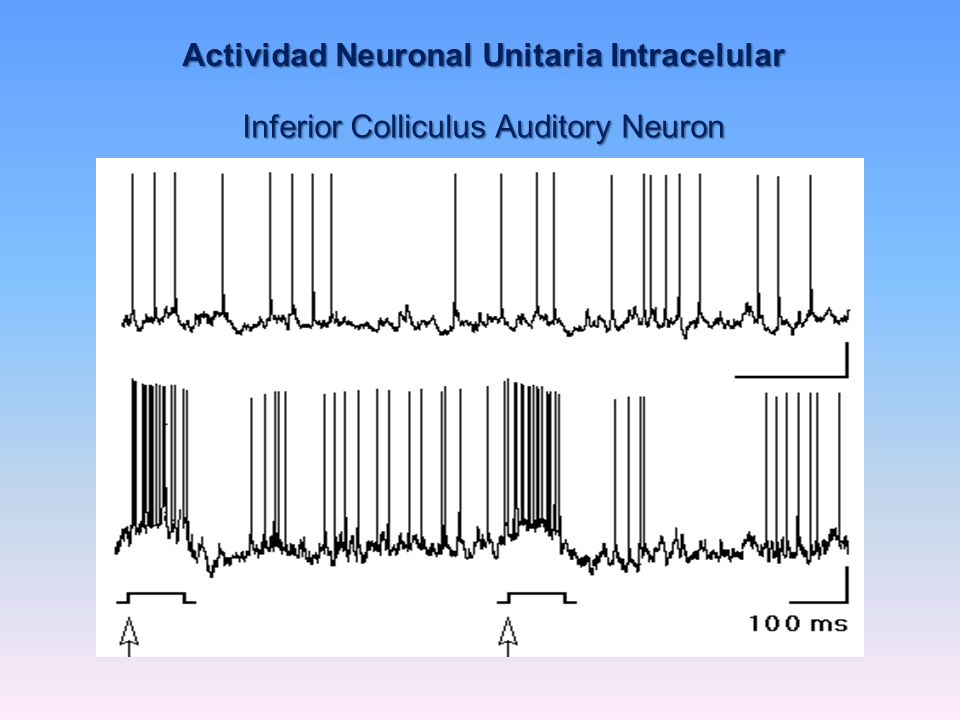 Actividad Neuronal Unitaria Intracelular