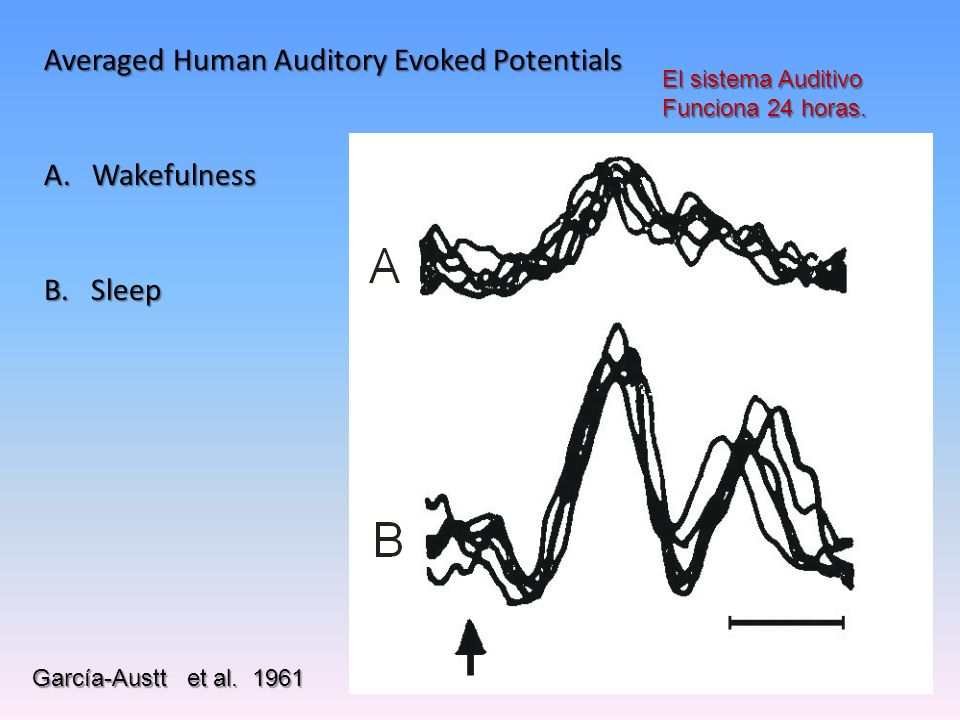 Averaged Human Auditory Evoked Potentials