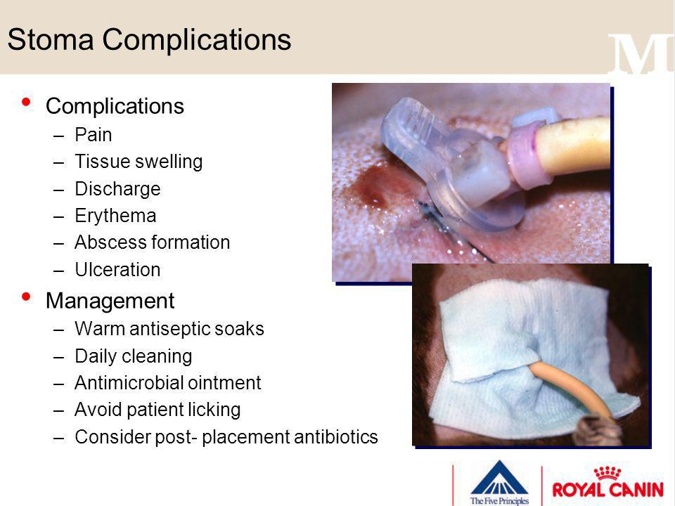 Stoma Complications Complications Management Pain Tissue swelling