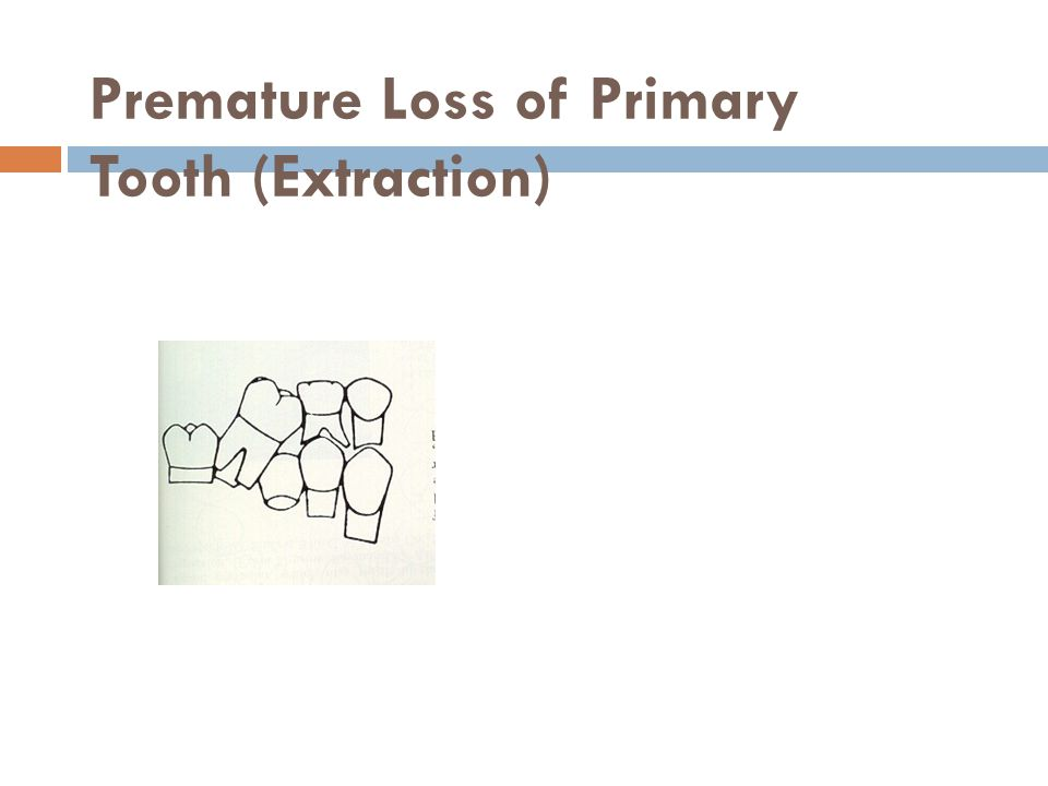 Premature Loss of Primary Tooth (Extraction)