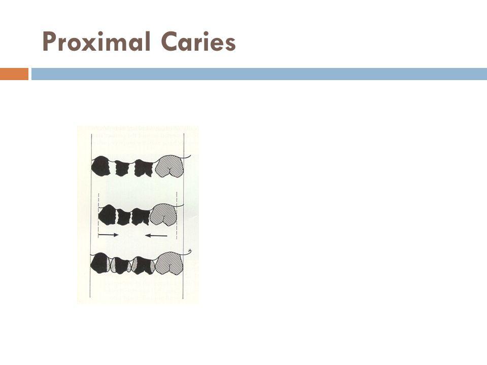 Proximal Caries