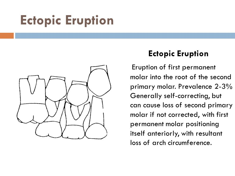 Ectopic Eruption Ectopic Eruption