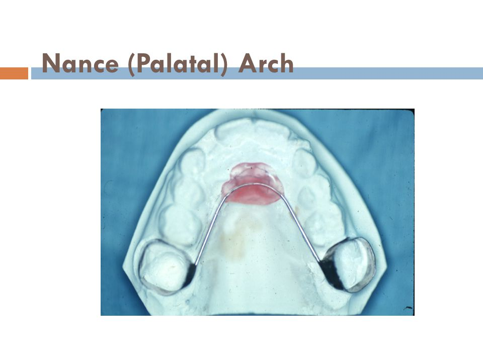 Nance (Palatal) Arch