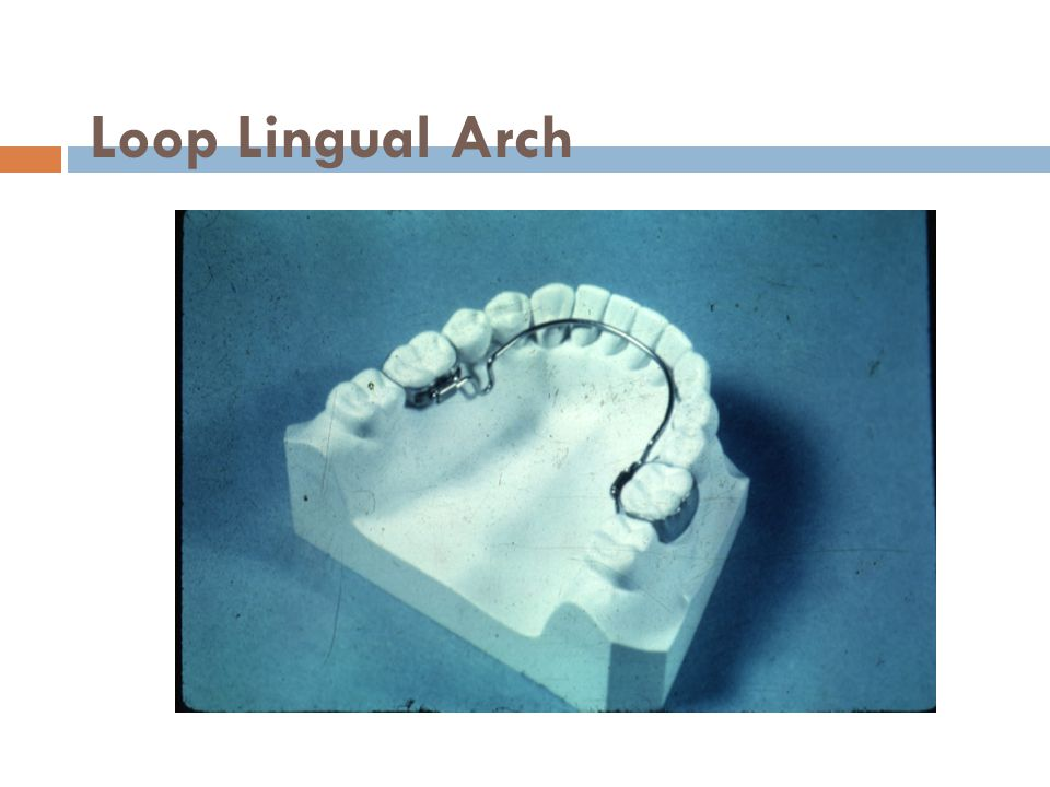 Loop Lingual Arch