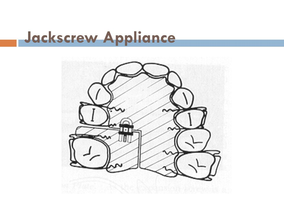 Jackscrew Appliance