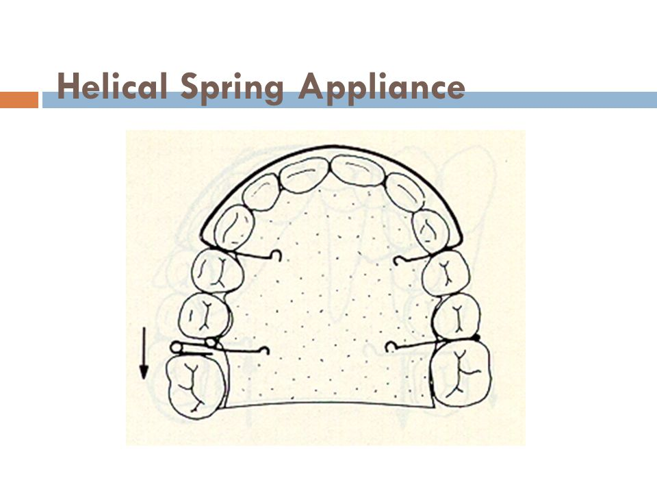 Helical Spring Appliance