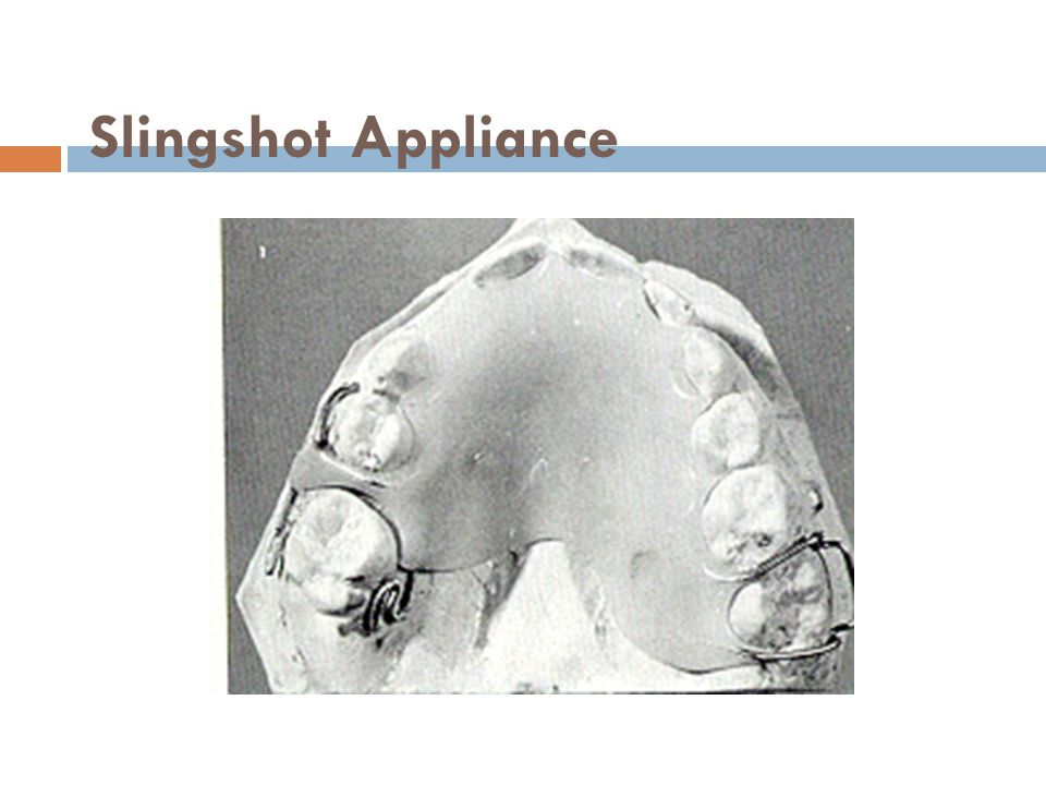 Slingshot Appliance
