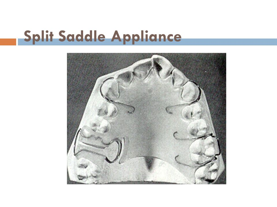 Split Saddle Appliance