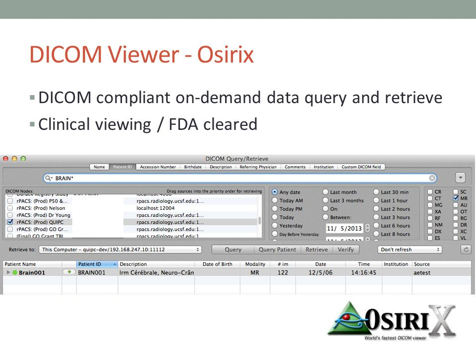 DICOM Viewer - Osirix DICOM compliant on-demand data query and retrieve.