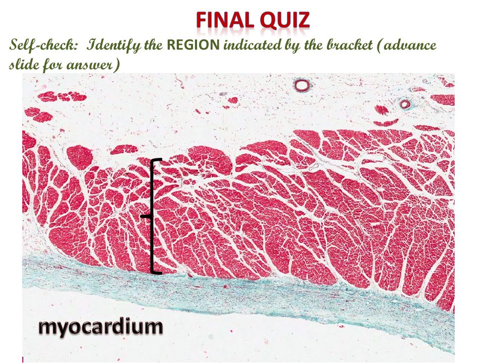 Final quiz Self-check: Identify the REGION indicated by the bracket (advance slide for answer) myocardium.