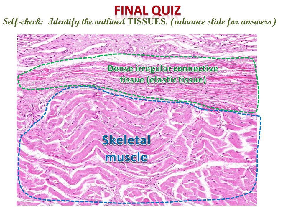Dense irregular connective tissue (elastic tissue)