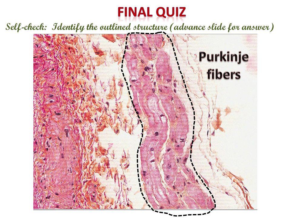 Final quiz Purkinje fibers