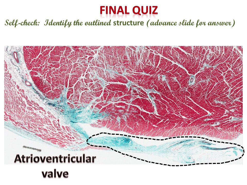 Atrioventricular valve
