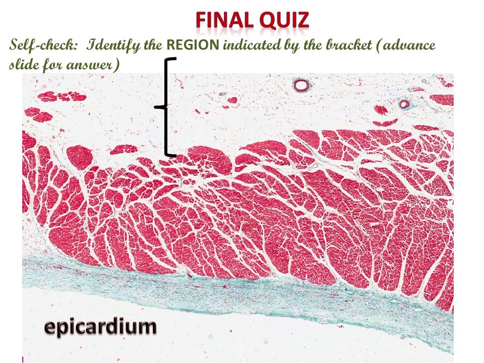 Final quiz Self-check: Identify the REGION indicated by the bracket (advance slide for answer) epicardium.