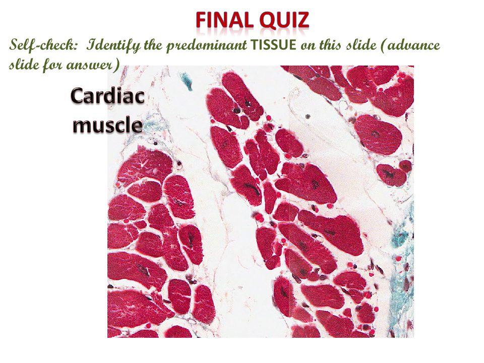 Final quiz Cardiac muscle