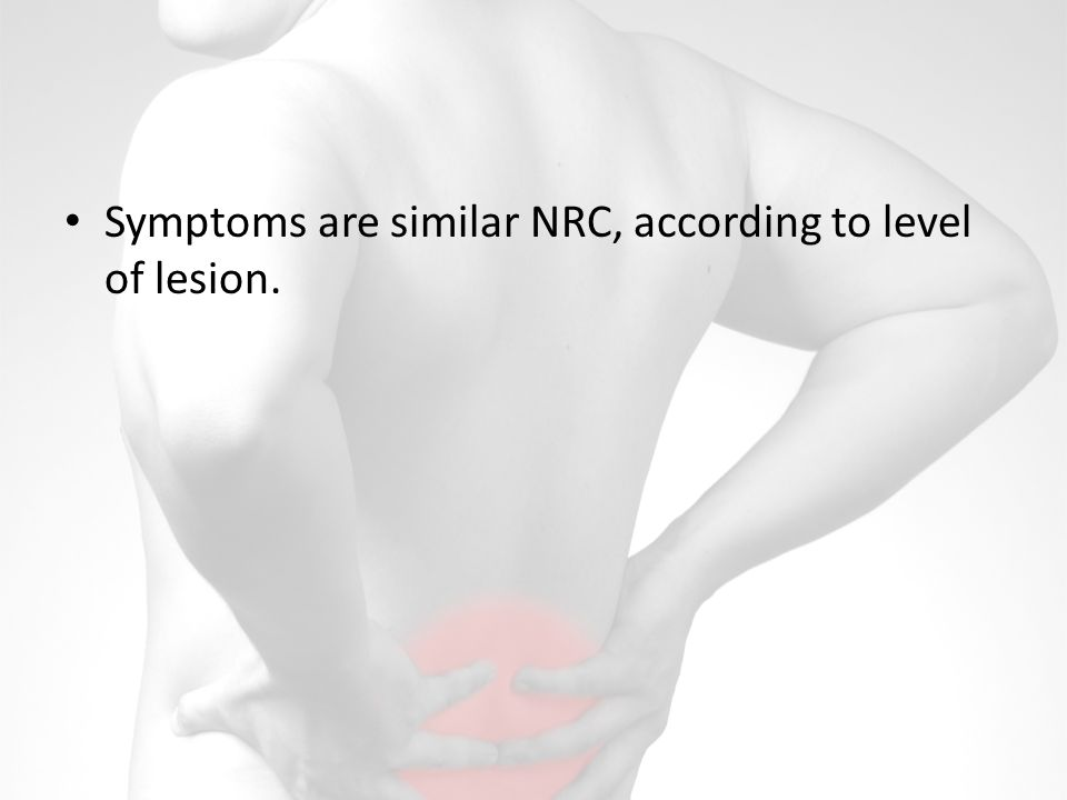 Symptoms are similar NRC, according to level of lesion.