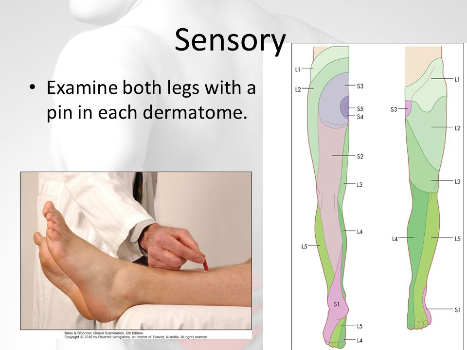 Sensory Examine both legs with a pin in each dermatome.