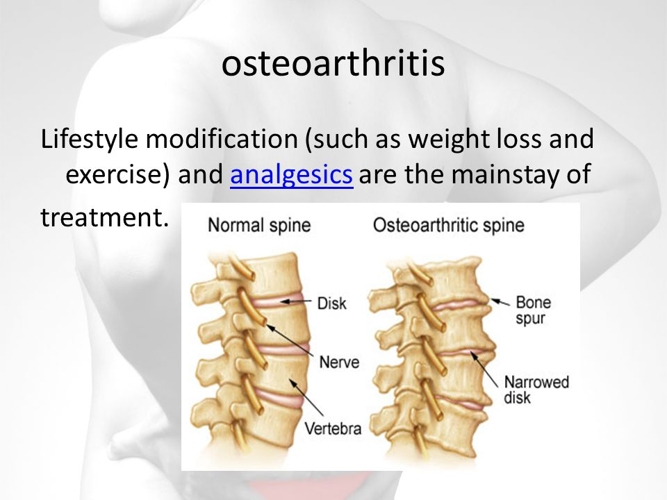 osteoarthritis Lifestyle modification (such as weight loss and exercise) and analgesics are the mainstay of treatment.