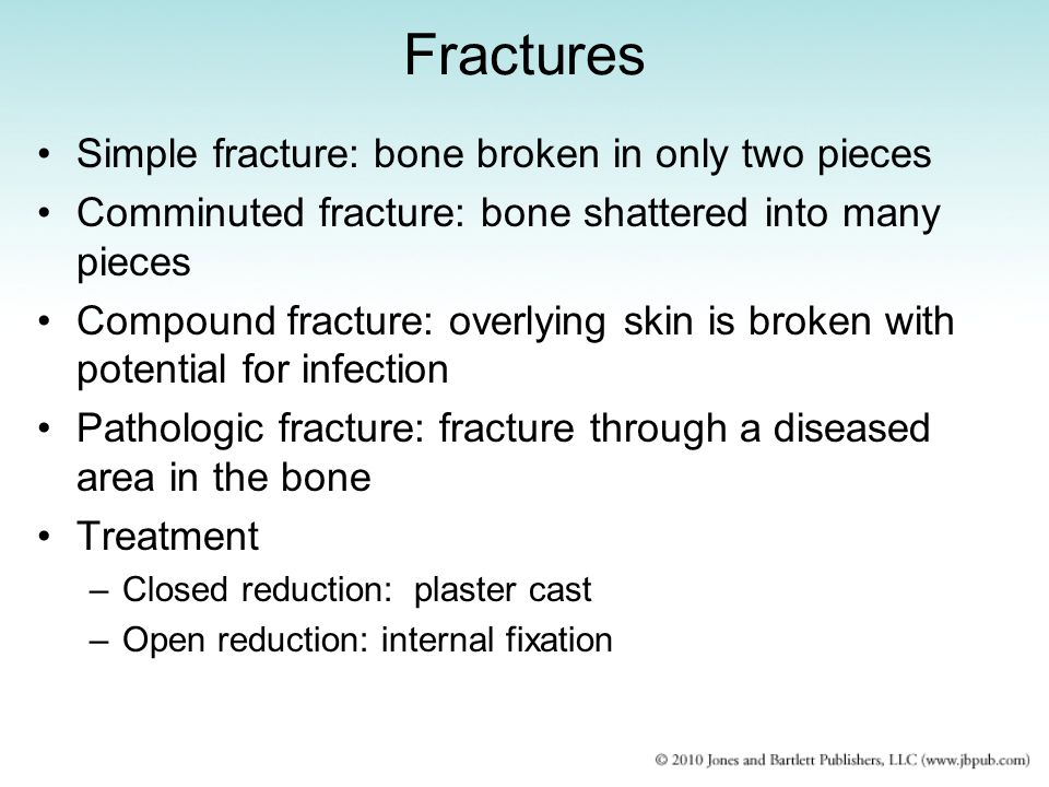 Fractures Simple fracture: bone broken in only two pieces