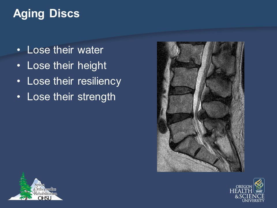 Aging Discs Lose their water Lose their height Lose their resiliency
